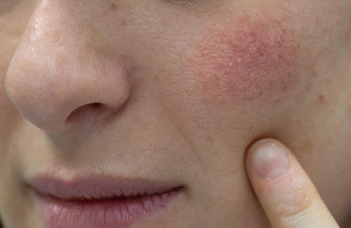 Atopowe zapalenie skóry: co warto wiedzieć?